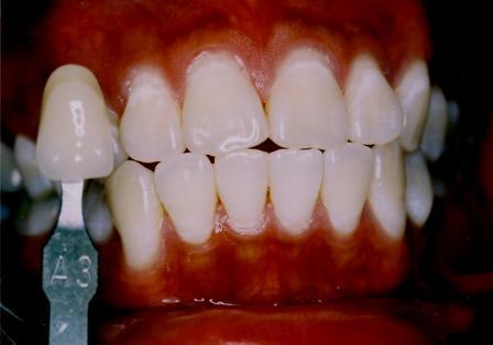 San Diego Tooth Whitening Ernest C Wong Dds Ms San Diego Dentist
