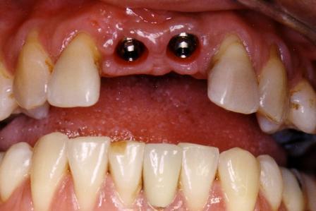 Dental Implant Case 9 Ernest C Wong Dds Ms San